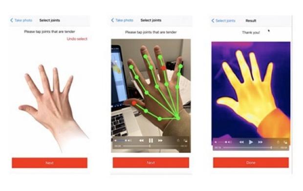 Digital Health Solutions for Rheumatoid Arthritis